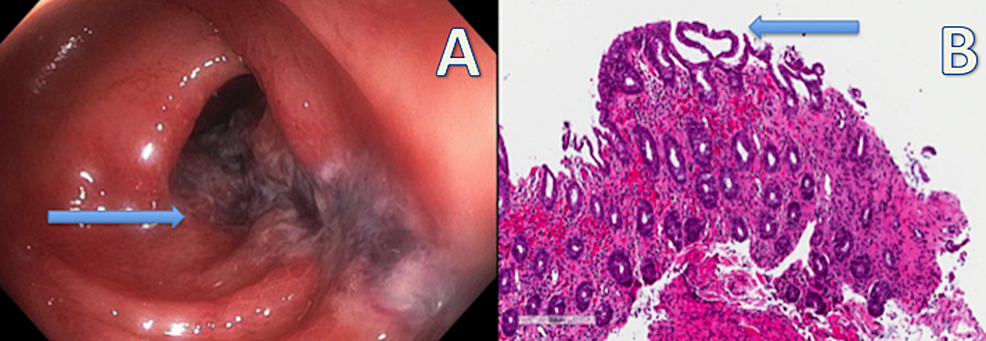 Colonoscopy-demonstrating-discontinuous-areas-of-non-bleeding-ulcerated-mucosa-with-no-stigmata-of-recent-bleeding-in-the-sigmoid-colon-and-descending-colon;-microscopic-evaluation-revealed-characteristic-features-of-surface-epithelial-injury,-crypt-epithelial-atrophy,-crypt-loss,-lamina-propria-hemorrhage,-and-lamina-propria-hyalinization