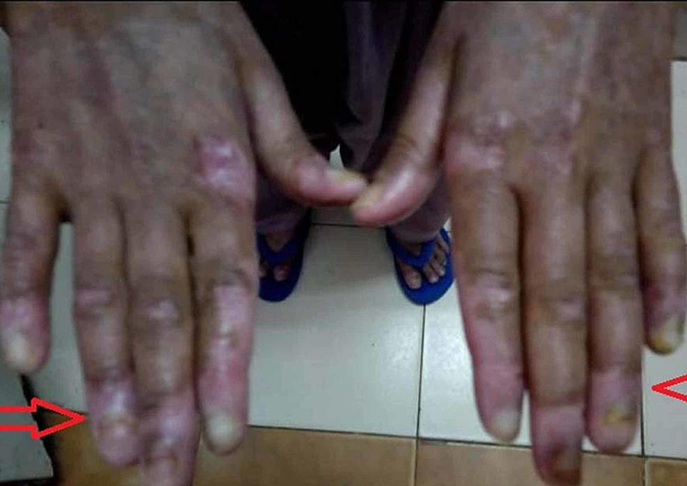 Loss-of-fingernails-with-peeling-of-skin