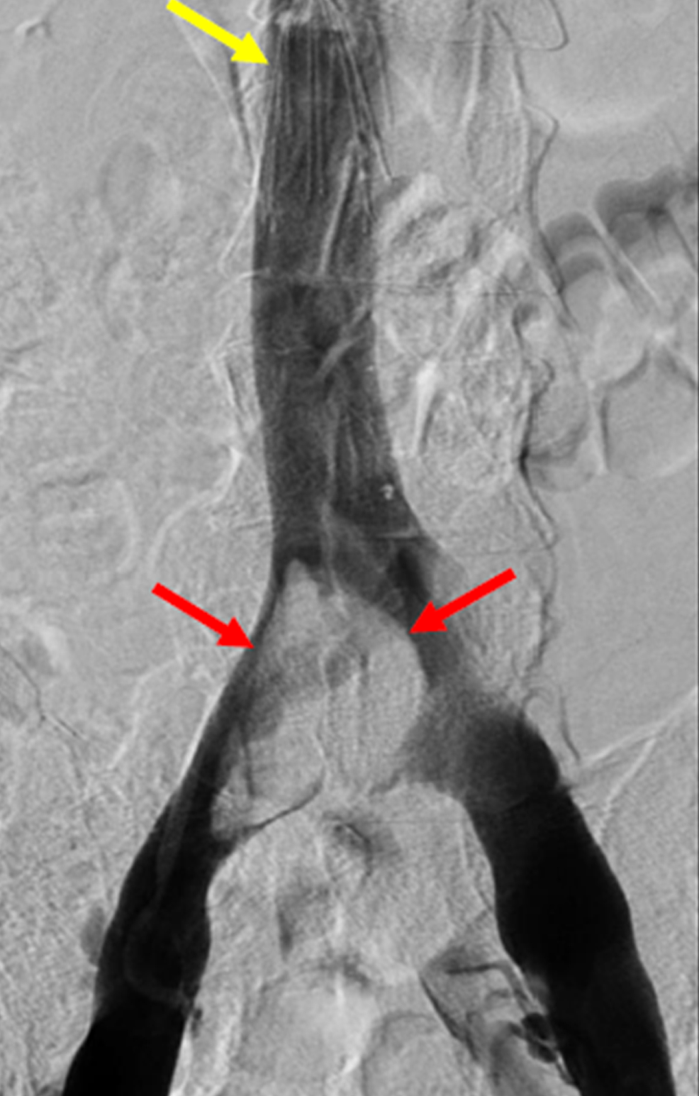 Pelvic-Angiogram-Demonstrating-Extensive-Thrombus-within-the-Iliocaval-Confluence