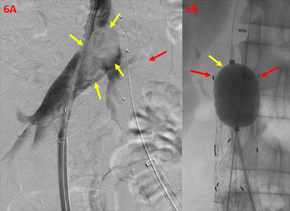 Correction-of-Persistent-Filling-Defect-within-the-Right-Iliac-Vein-and-Confluence-of-the-Inferior-Vena-Cava
