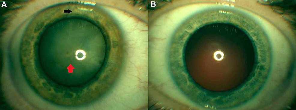 External-slit-lamp-photography-of-the-right-eye-and-left-eye-(A-B).-