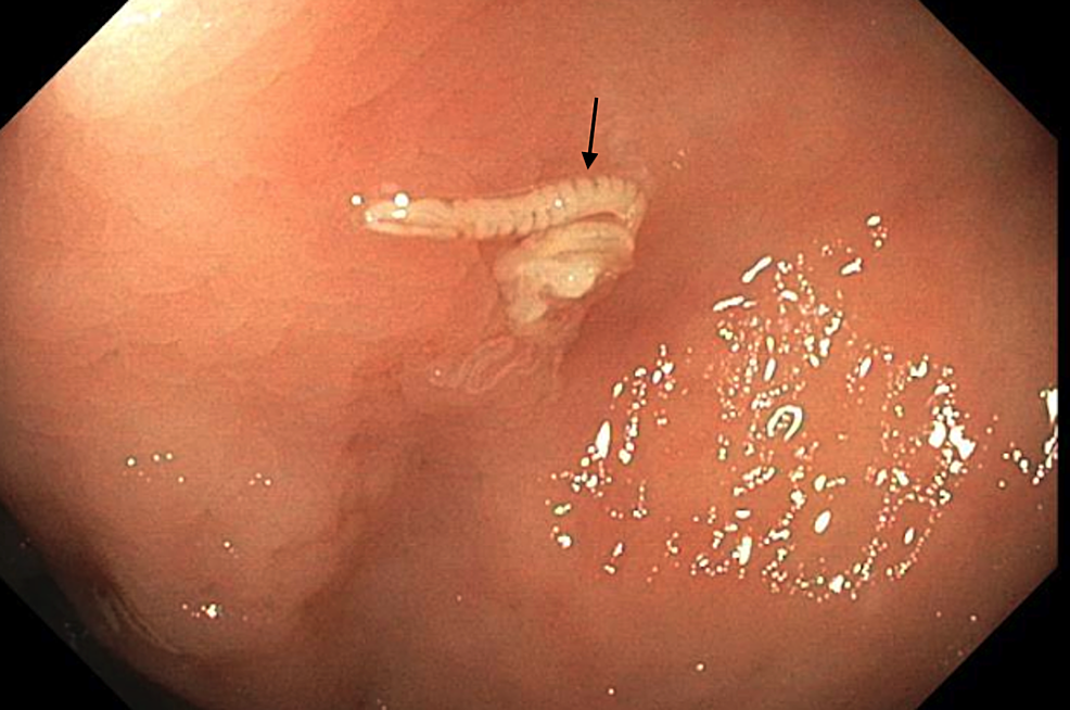 Pinworm-discovered-incidentally-during-screening-colonoscopy.