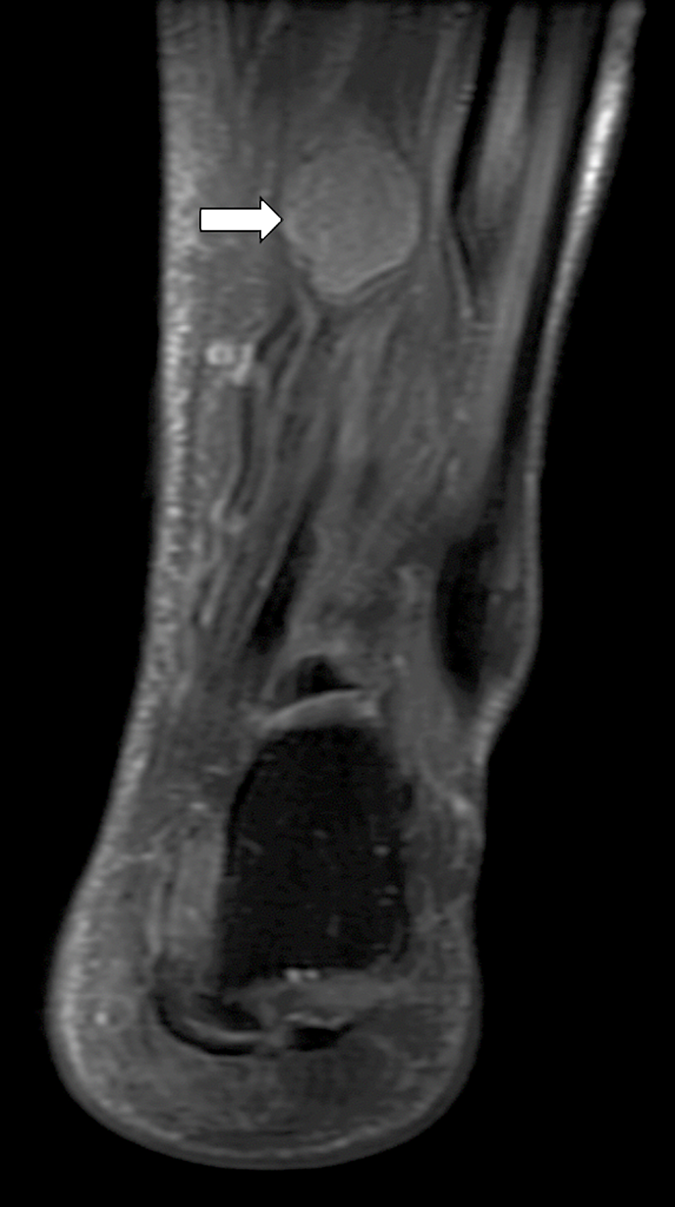 T2-weighted-coronal-MRI-showing-the-mass-arising-from-posterior-tibial-nerve