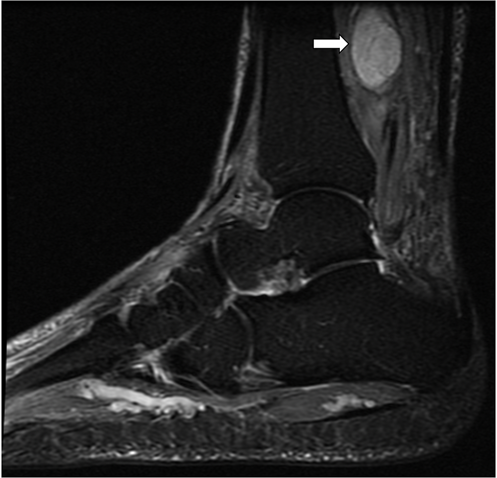 T2-weighted-sagittal-MRI-showing-the-mass-arising-from-posterior-tibial-nerve