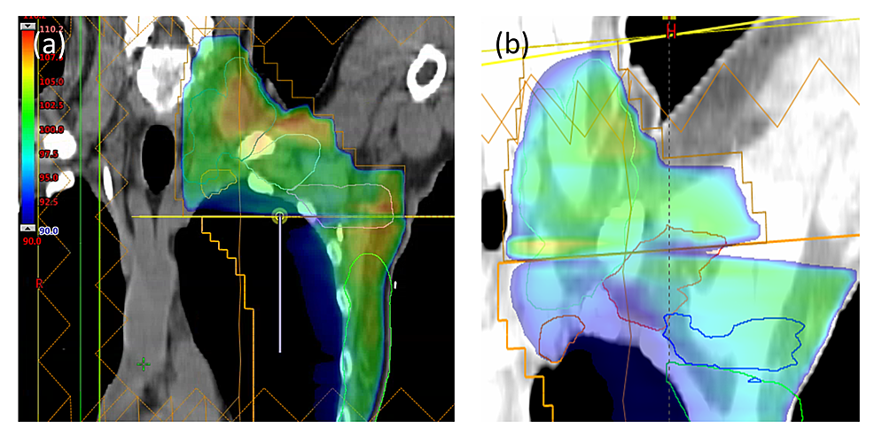 Comparison-of-dose-distributions-near-the-supraclavicular/tangent-field-match-line-for-the-(a)-Halcyon-2.0-multiple-isocenter-plan-and-the-(b)-Halcyon-1.0-single-isocenter-plan-for-a-prior-case