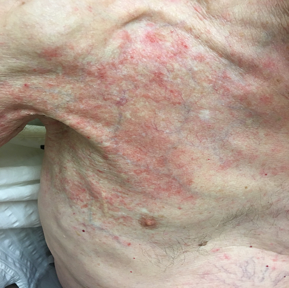 Radiation-recall-dermatitis-in-the-patient's-right-arm-and-shoulder,-extending-to-the-anterior-chest-wall.