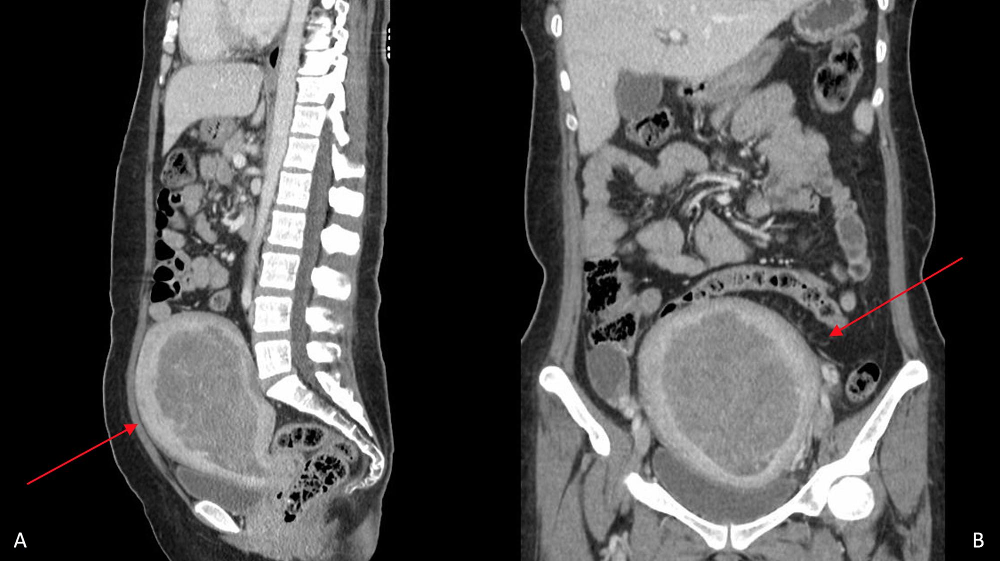 Cureus   Brain Metastasis in a Young Patient with Uterine