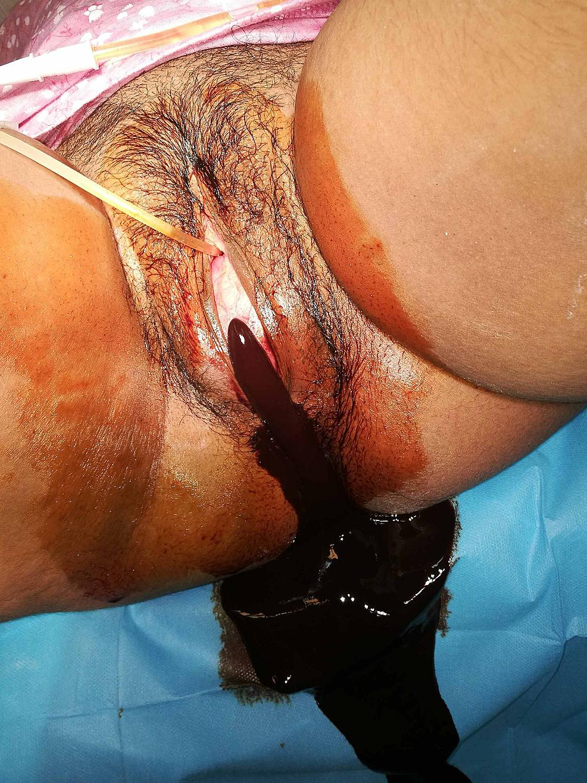 Hymenectomy