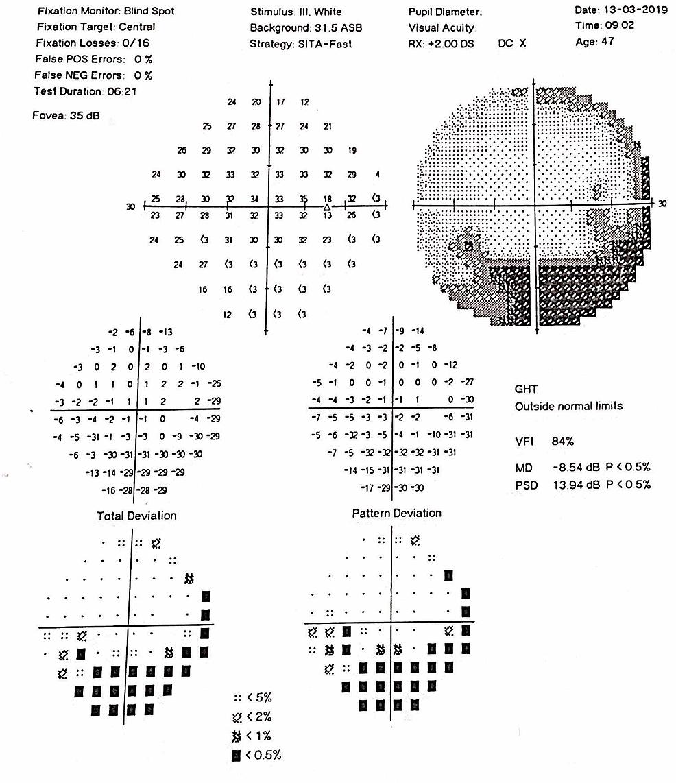 Visual-Field-Right-Eye