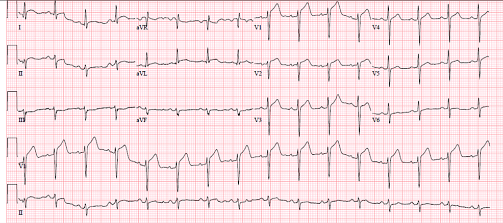 EKG-at-the-time-of-arrival-showed-ST-segment-elevations-in-precordial-leads