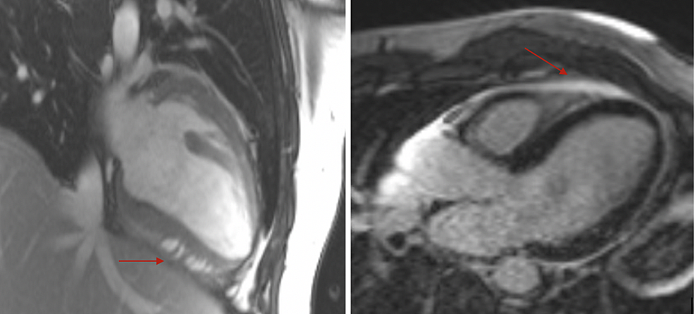 Cardiac-MRI-showing-early-(left-arrow)-and-late-(right-arrow)-gadolinium-enhancement-consistent-with-myocarditis