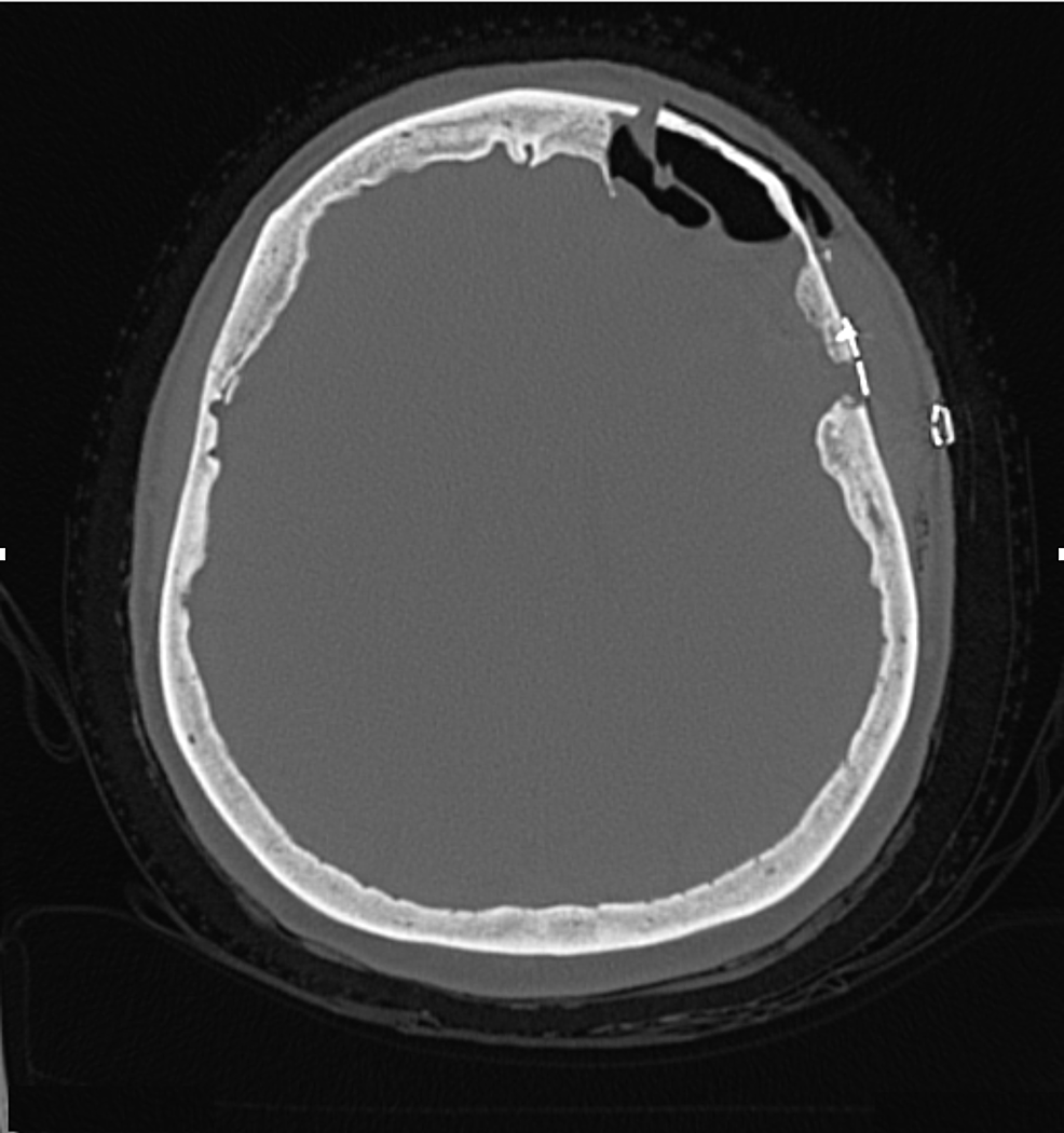 Postoperative-computed-tomography-of-the-head
