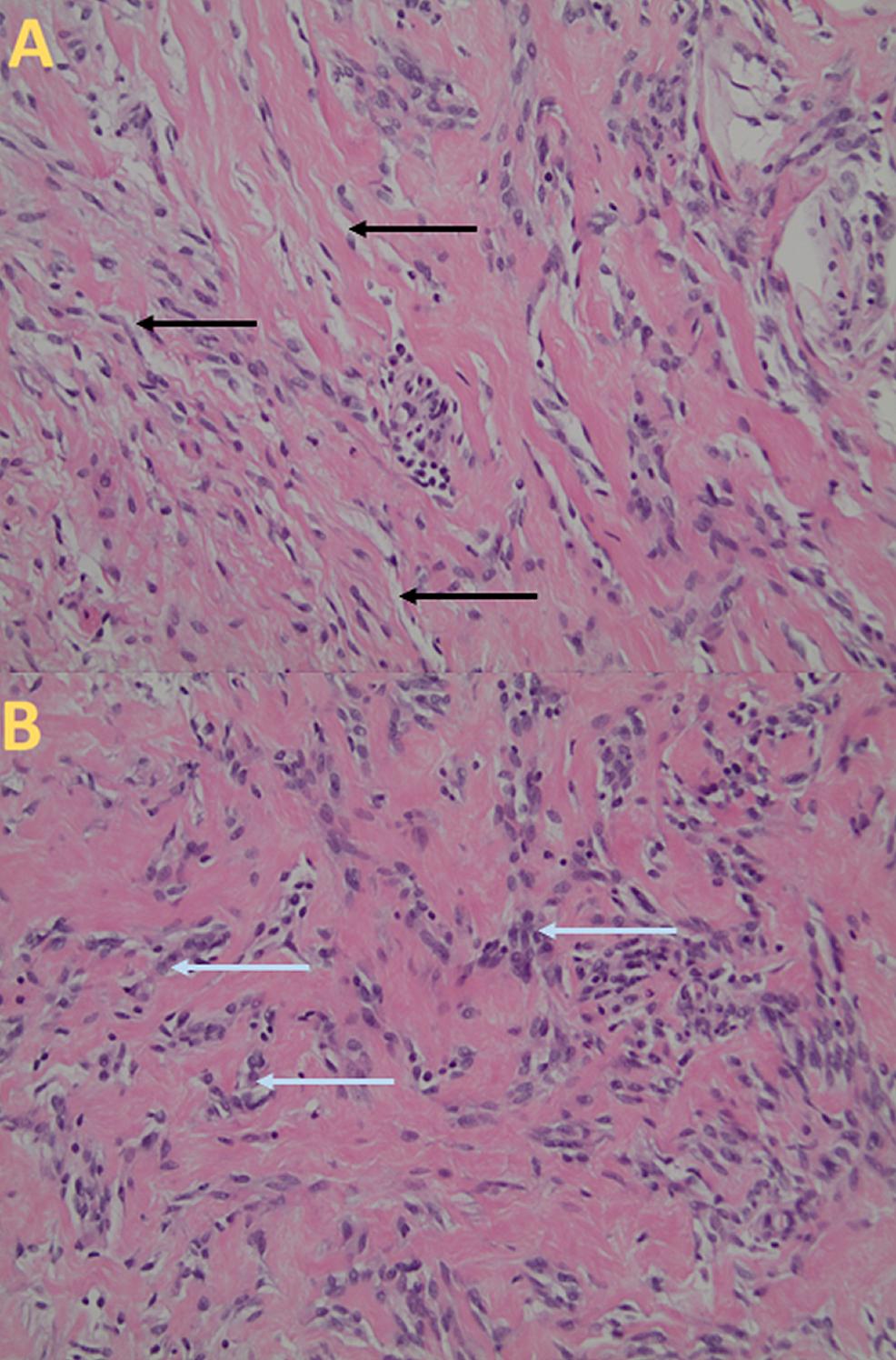 Histologic-Appearance-of-Pseudoangiomatous-Stromal-Hyperplasia
