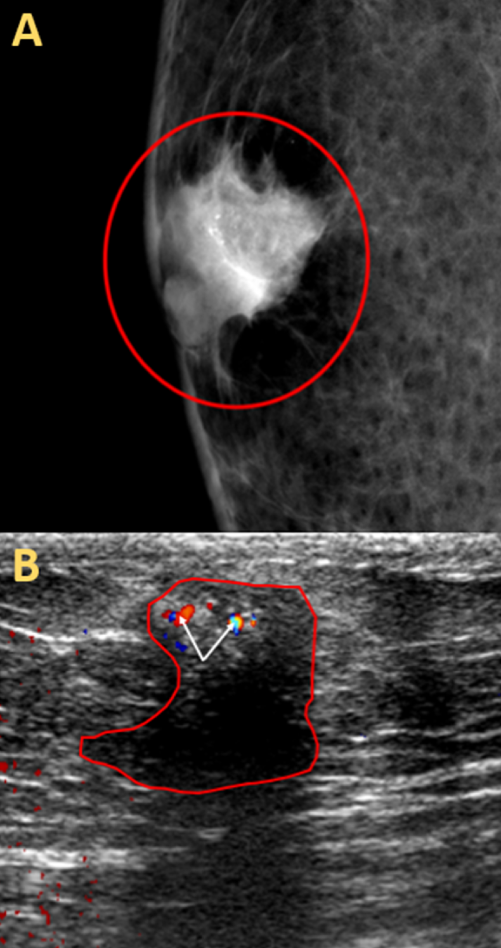 Imaging-Findings-of-Infiltrative-Ductal-Carcinoma-In-Situ