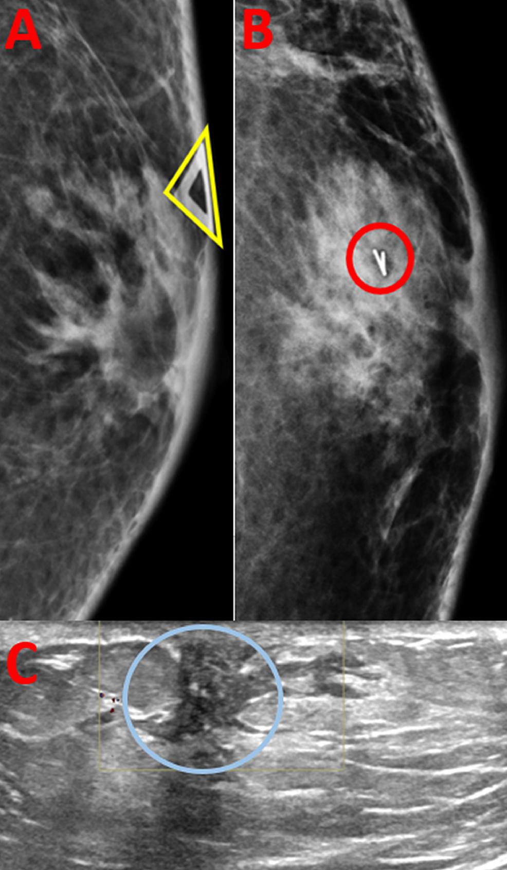 Imaging-Findings-of-Pseudoangiomatous-Stromal-Hyperplasia