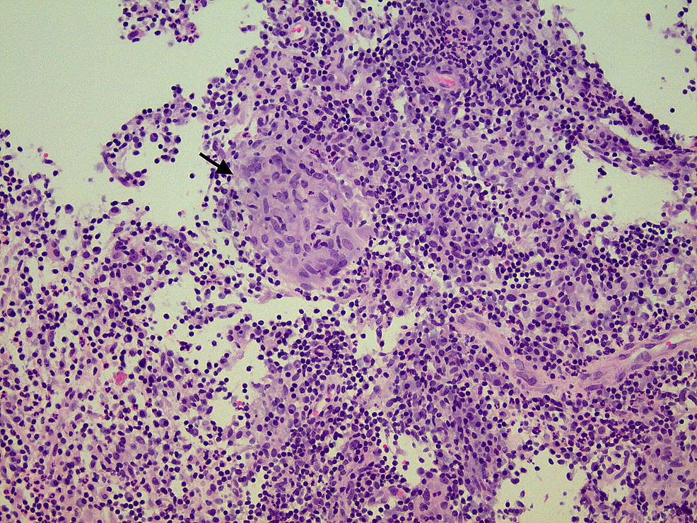 Histopathology-showing-benign-breast-tissue-with-marked-acute-and-chronic-inflammation-and-granulomatous-inflammation-evident-by-the-presence-of-noncaseating-granuloma-(black-arrow).