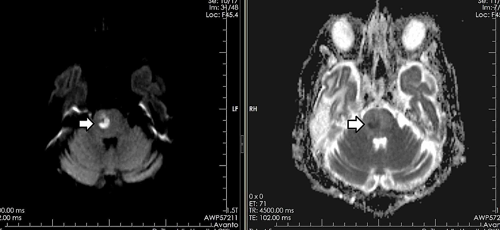 Similar-patient-with-a-right-hemipons-abscess-showing-diffusion-restriction-on-DWI-and-ADC-sequences