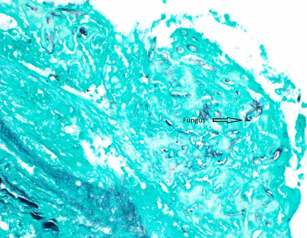 Right-atrial-mass-Gomori's-Methenamine-Silver-(GMS)-stain-40x