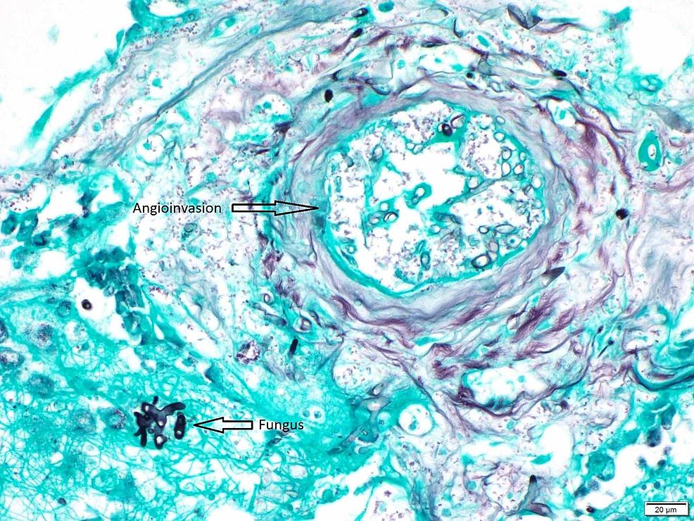 Left-lung-nodule-Gomori's-Methenamine-Silver-(GMS)-stain