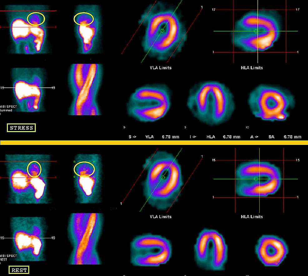 Myocardial-Perfusion-Imaging-of-Spontaneous-Coronary-Artery-Dissection-(SCAD)