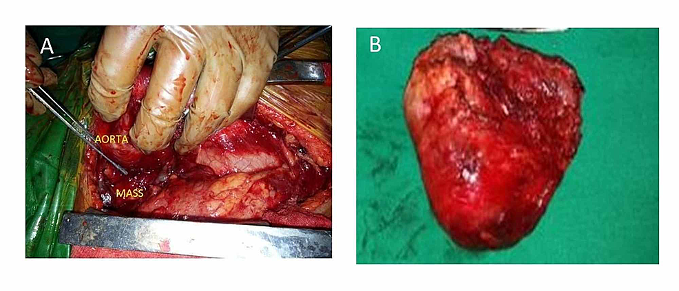 (A)-Intraoperative-picture-of-the-tumor-compressing-the-trachea;-(B)-specimen-after-complete-excision