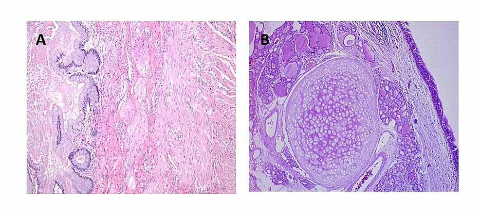 (A,-B)-Histopathology-of-the-excised-tumor-showing-mature-epidermis,-adnexal-elements,-bone-and-cartilage