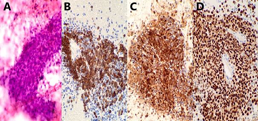 Fine-needle-aspiration-of-the-perigastric-mass-displaying-cellular-smears-composed-of-sheets-or-clusters-of-atypical-epithelioid-cells-(A).-By-immunohistochemistry,-neoplastic-cells-positive-for-melanoma-cocktail-(B),-S100-protein-(C)-and-SOX10-(D).-The-morphologic-and-immunohistochemical-features-are-most-consistent-with-metastatic-melanoma.