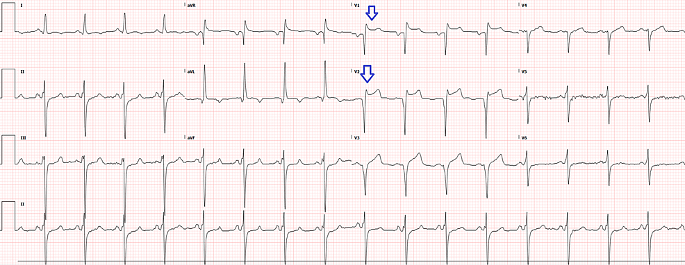 Electrocardiogram-at-triage-showing-ST-elevations-(arrows)