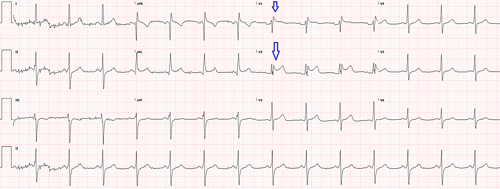 Old-electrocardiogram-in-EMR-from-one-year-ago-showing-similar-elevations-(arrows)