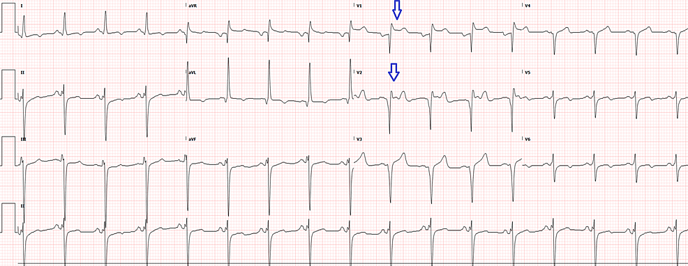 Electrocardiogram-two-hours-after-triage-showing-ST-elevations-(arrows)