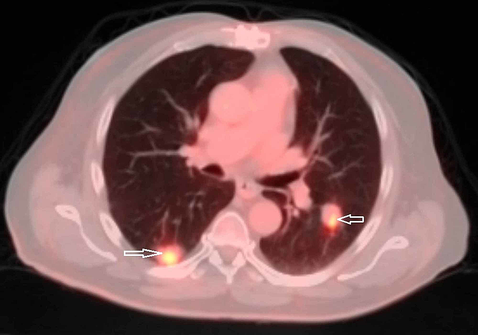 Positron-emission-tomography/computed-tomography-(PET/CT)-scan-showing-metabolically-active-pulmonary-nodules-(arrows)