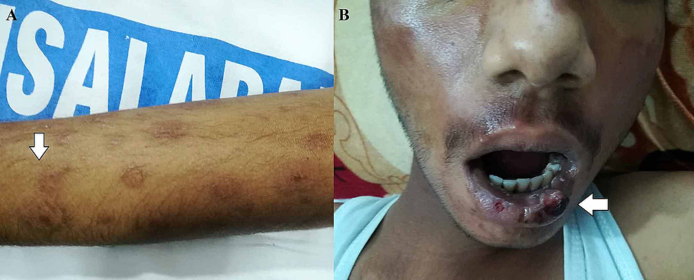 A)-Widespread-round-to-oval,-purpuric-rash-covering-the-upper-limb.-B)-Mild-erosions-with-healing-ulcerations-covering-the-lips-and-the-oral-cavity.