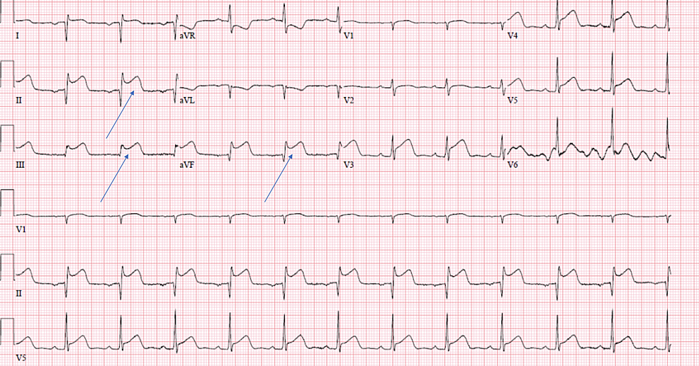 -Electrocardiogram-showing-ST-segment-elevation-in-leads-II,-III,-and-aVF