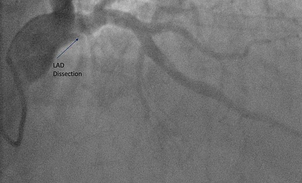 --Proximal-LAD-coronary-artery-showing-dissection