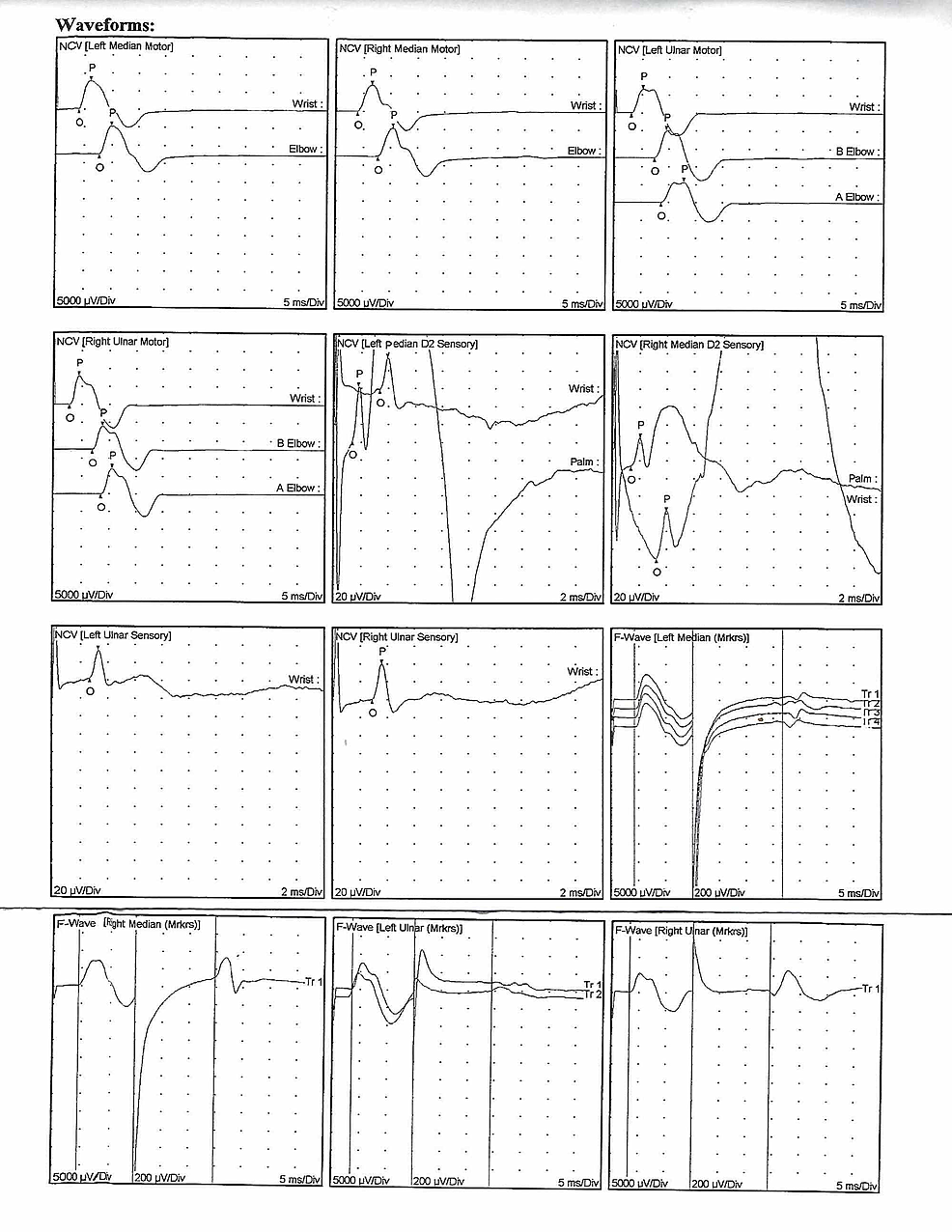 Nerve-conduction-study-and-F-wave-latency-waveforms.