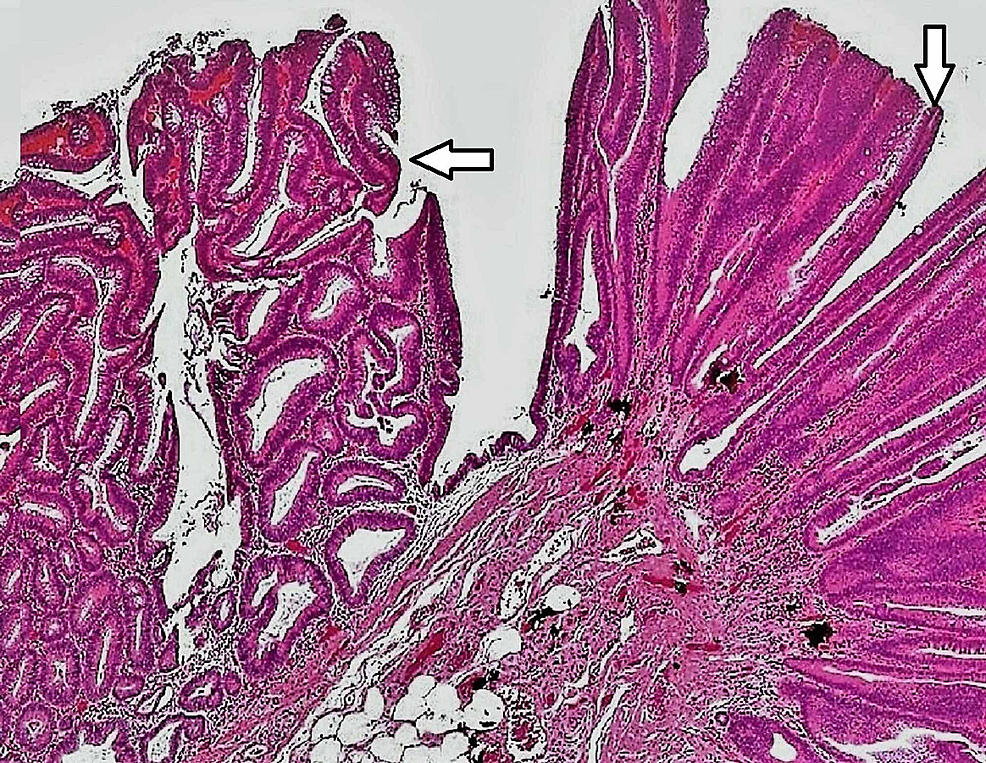 ERCP-biopsy-specimen-showing-tubulovillous-adenoma-of-the-duodenum