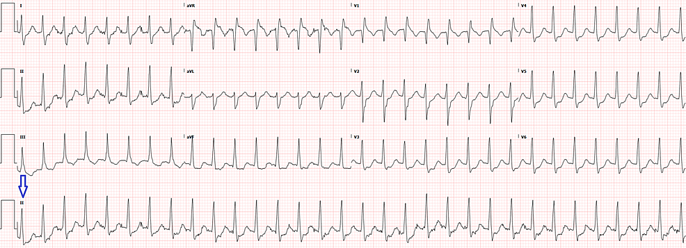 Electrocardiogram-on-initial-presentation-with-rhythm-strip-(arrow)-showing-supraventricular-tachycardia