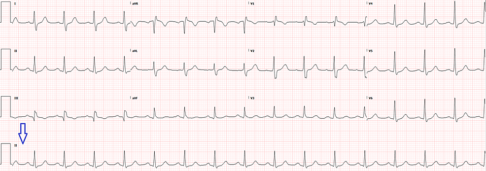 Repeat-electrocardiogram-two-hours-later-with-rhythm-strip-(arrow)-showing-normal-sinus-rhythm