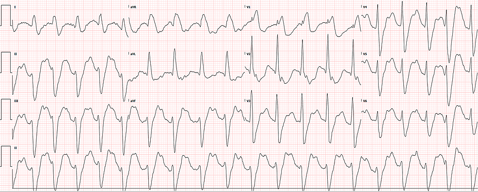 Initial-ECG-in-the-resuscitation-room-upon-arrival