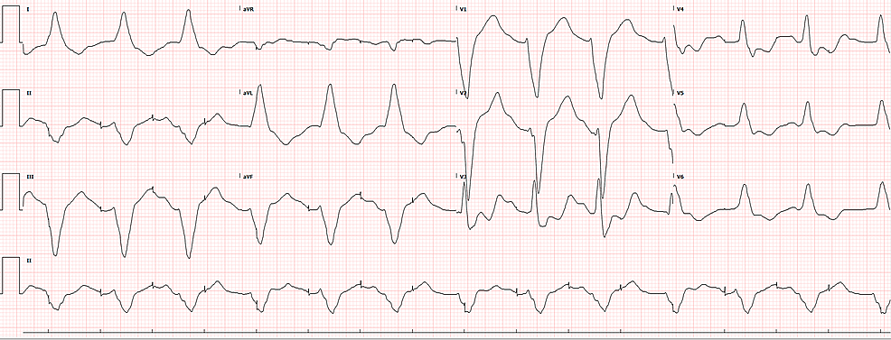 ECG-after-5.5-hours-of-antiarrhythmics-(lidocaine)-and-electrolyte-replacement-showing-a-failure-to-sense-and-capture