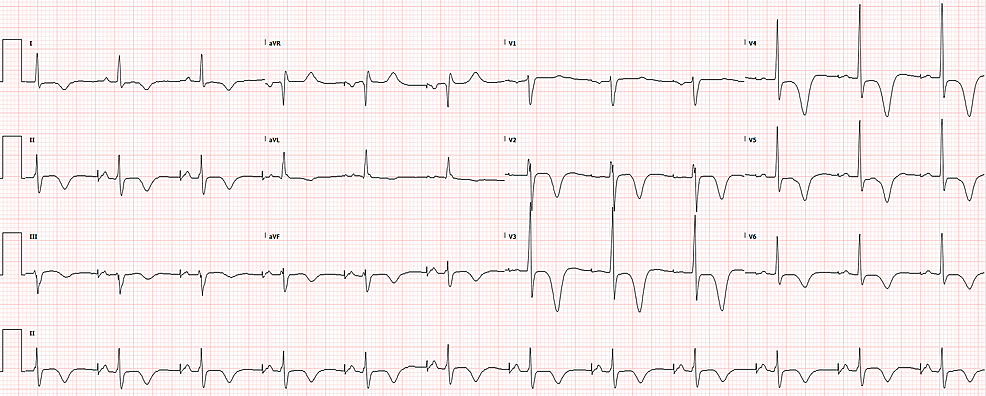 ECG-10-days-later,-when-the-patient-presented-back-to-the-ED-for-routine-chest-pain-workup,-showing-his-baseline-atrial-paced-rhythm-restored