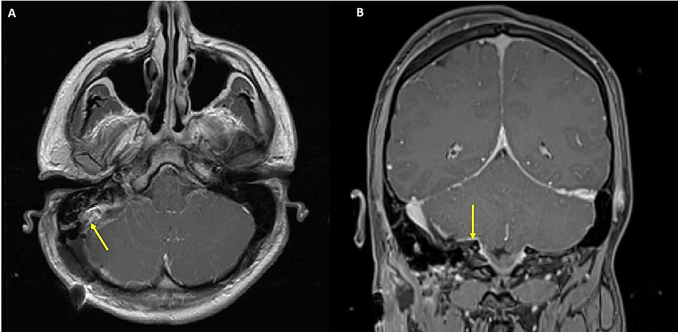 Post-operative-magnetic-resonance-imaging-(MRI)-brain-with-gadolinium-contrast-