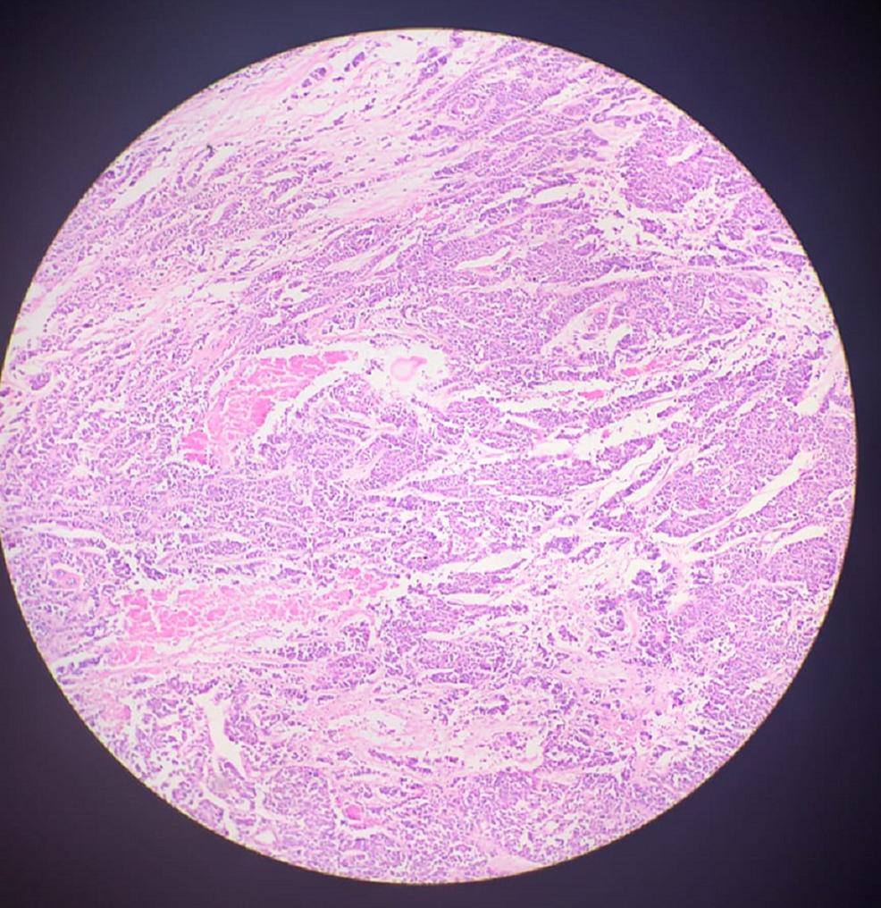 Histopathology-slide
