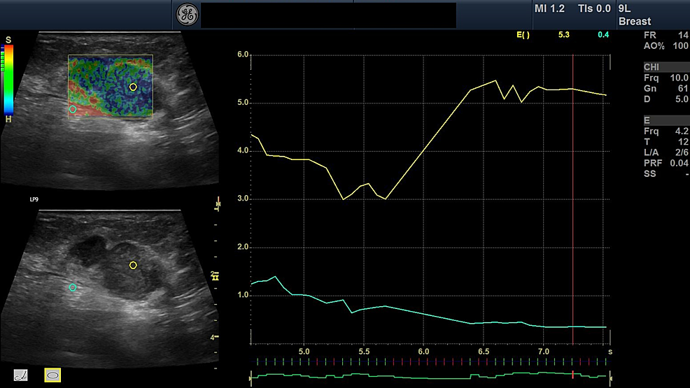 Elastography-image-of-breast-lesion