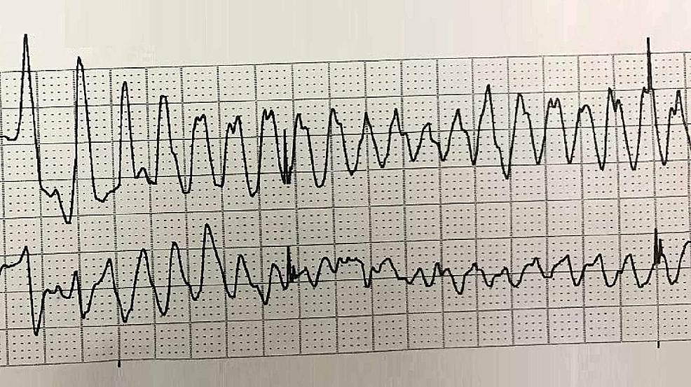 Electrocardiogram-showing-polymorphic-ventricular-tachycardia-(torsades-de-pointes)-during-the-cardiac-arrest.