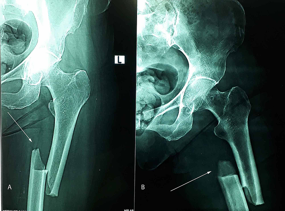 Preoperative-anteroposterior-(1A)-and-lateral-view-(1B)-X-ray-of-a-61-year-old-female-showing-features-of-atypical-diaphyseal-femoral-fracture