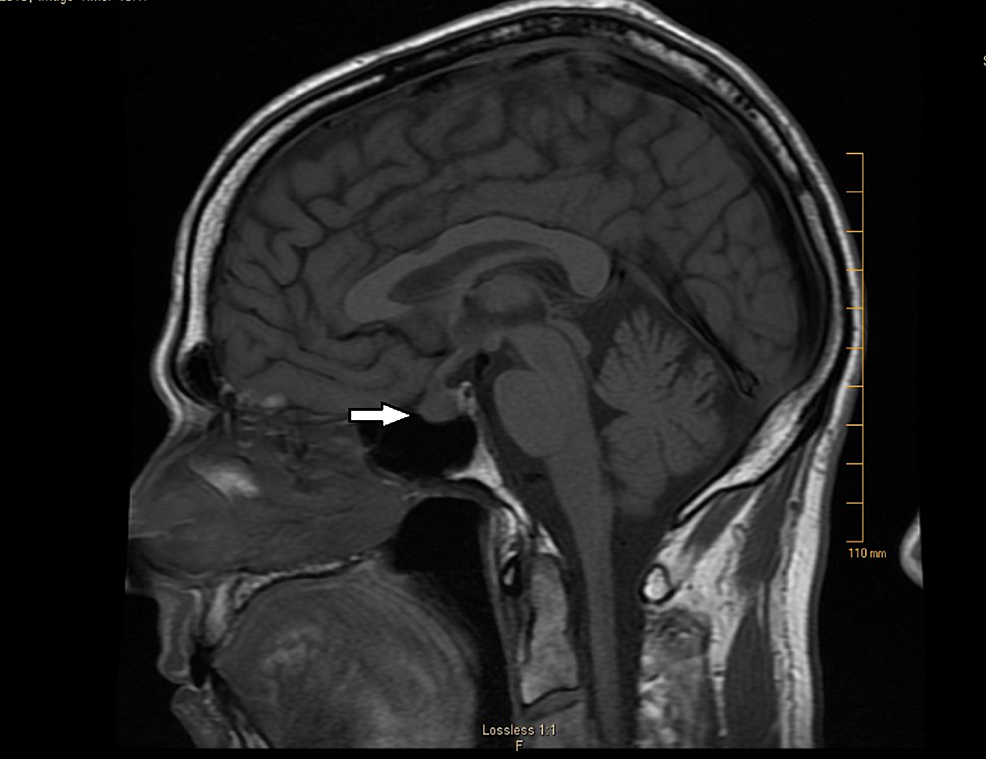 Sagittal-section,-T1-weighted-image-showing-pituitary-enlargement-consistent-with-the-diagnosis-of-hypophysitis