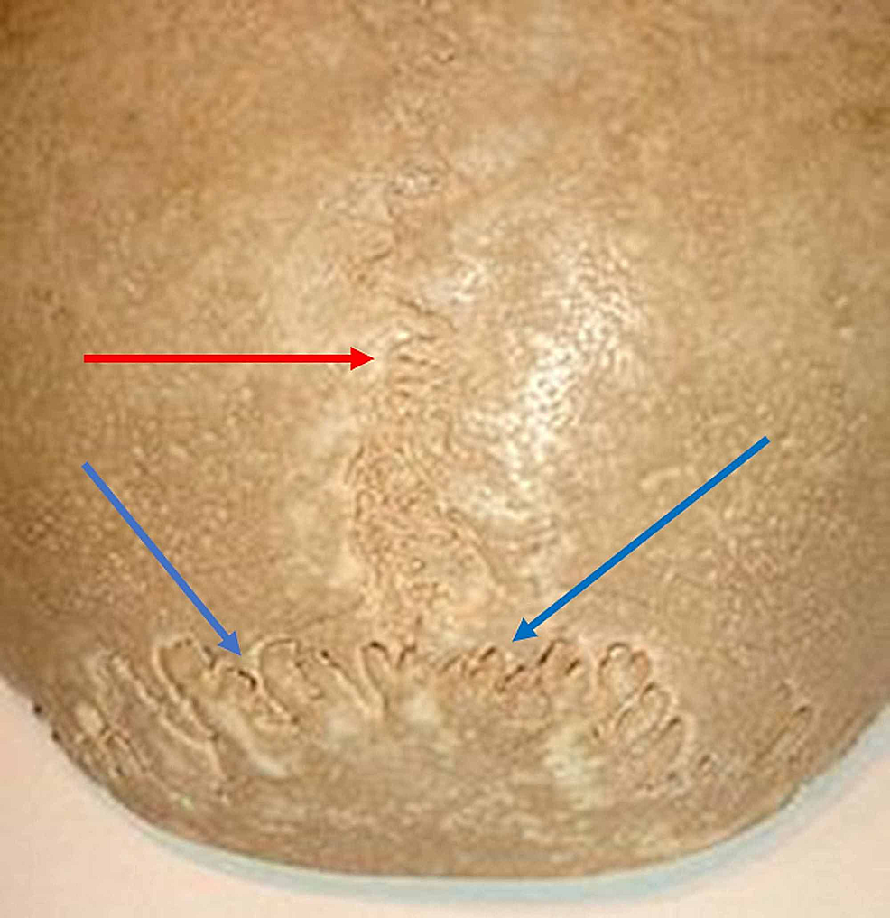 The-figure-illustrates-the-occipitoparietal-sutures.-The-red-arrow-shows-the-suture-between-the-parietal-bones;-the-blue-arrows-show-the-occipitoparietal-sutures.