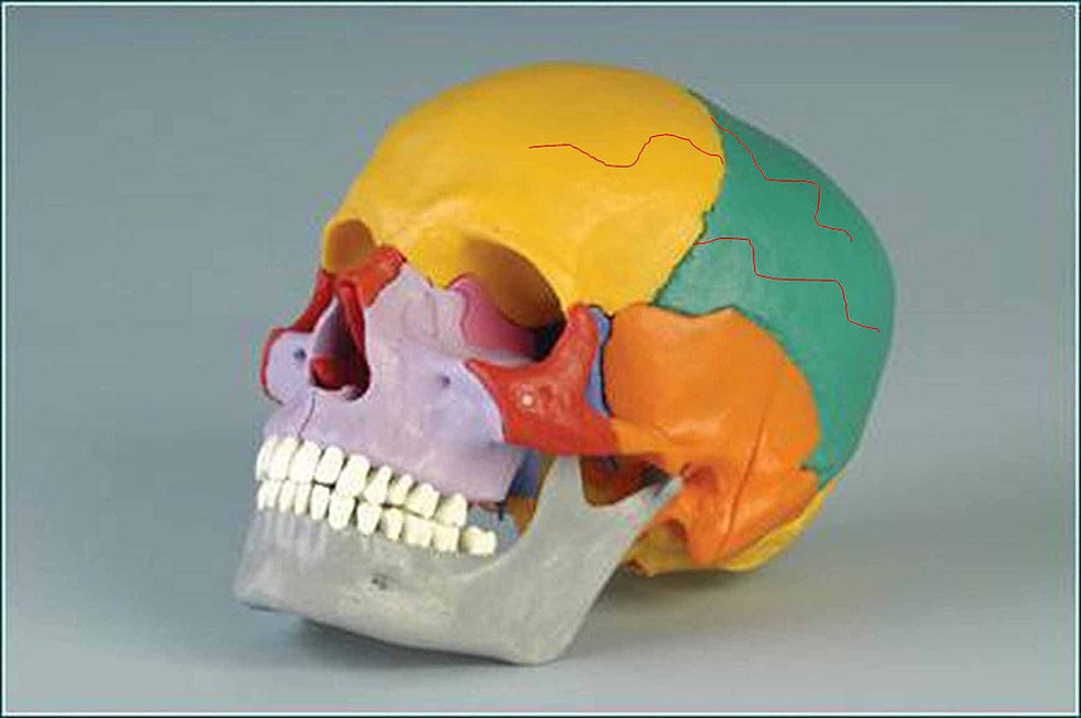 The-figure-shows-a-model-of-the-skull-with-red-lines-drawn-above-the-frontal-bone-and-the-parietal-bone.-The-figure-demonstrates-the-presence-of-trigeminal-dural-nerve-endings-external-to-the-skull,-whose-terminations-cross-the-sutures-and-innervate-the-myofascial-system-of-the-skull.
