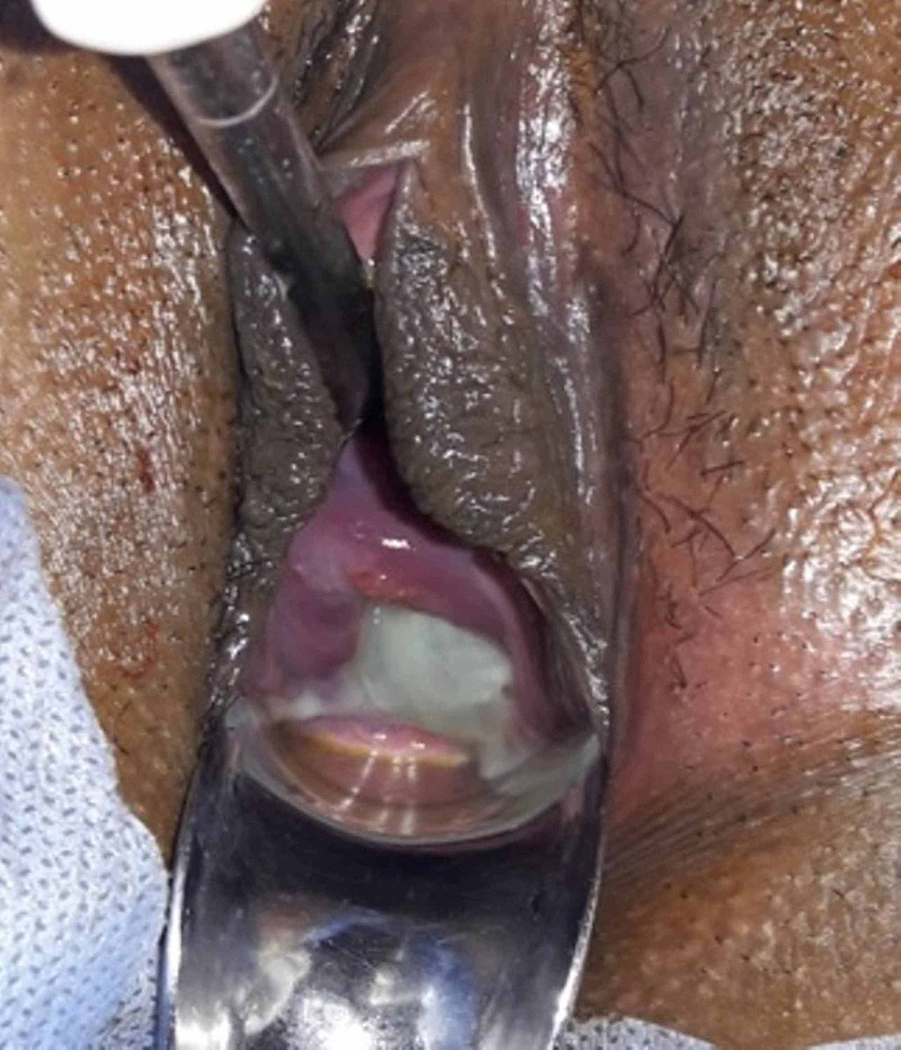 Photograph-showing-bulging-membranes-through-well-effaced-cervix